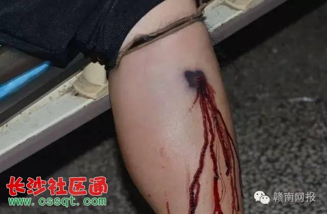江西赣县大田一农妇被剧毒蛇咬伤 腿部伤口竟然