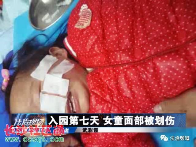 学生入园第七天初中被事发!划伤河南平顶山树女童面部胸照图片