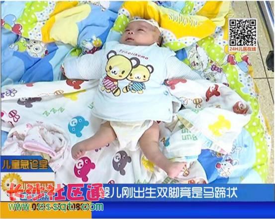 福州两月大男婴全身多处畸形 恐面临终身瘫痪