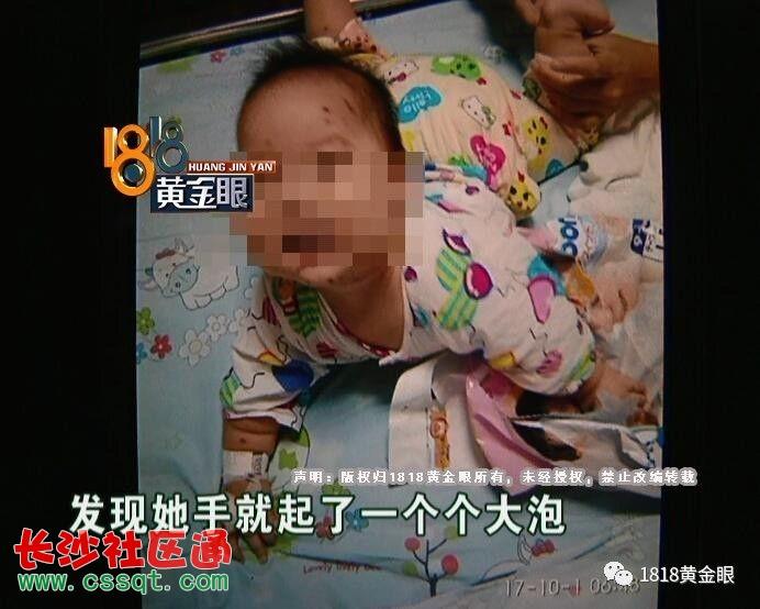 杭州市儿童医院感染病区 王护士长:住了一个星期,住院的时候,这个情况都没有发生的,因为我们都有大交班,护士和护士之间都会交班,我们都会检查腕带情况的。  王护士长表示,给孩子佩戴腕带,主要是对孩子的身份进行核实,腕带是纳米硅材质。  声音来源:广州福天技术有限公司 周经理:首先你起泡也好,你衣服什么东西,也要辨别一下,因为它不是有毒物品,它只是标识身份的腕带,这个标准都是国际标准。  杭州市儿童医院感染病区 王护士长:考虑到儿童,小孩子不配合,我们会采取这种方法,用口罩带串起来,再用我这个方法戴起